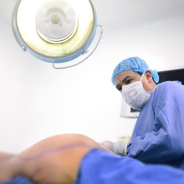La Grasa  obtenida durante la #Liposucción o #Lipolisis antes de exponerla al #laser o #vaser es utilizada para dar volumen a algunas zonas corporales como los glúteos, este procedimiento es conocido como #LipoinyecciónGlútea  #InjertoGraso  #Lipotransferencia grasa el resultado que se obtiene es moldeamiento recreando así un glúteo firme y voluminoso.   Puedes Solicitar una Cita en +57 3187120345 – WhatsApp   Dr. Gerardo Camacho.