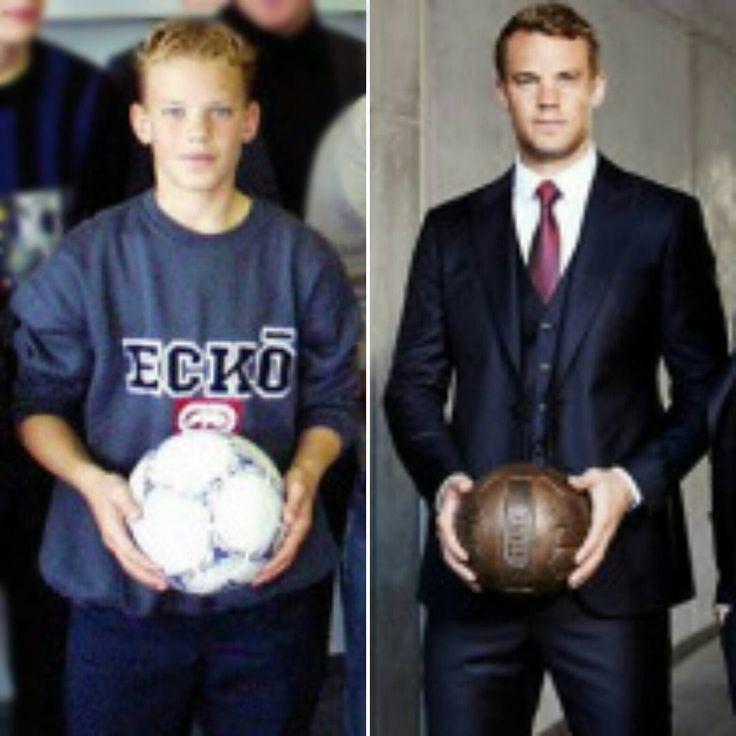 """Before and after. Antes e depois. . #ManuelNeuer #Neuer"""