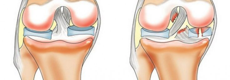 Артрит коленного сустава операция стоимость фото