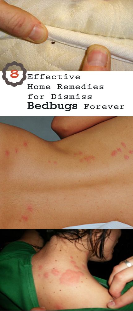 Bed Bug Home Treatment Part - 48: Best 25+ Bed Bug Remedies Ideas On Pinterest | Bed Bug Spray, Bed Bugs And Bed  Bug Control