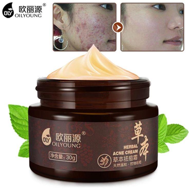 Herbal Acne Cream Anti Pimple Spot Acne Scars Blackhead Removal