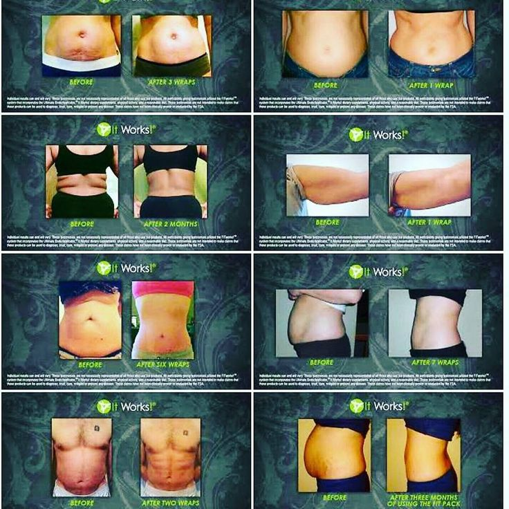 """Are you tired of hiding your """"problem"""" areas? The Ultimate Body Applicator aka CRAZY WRAP  comes in a versatile shape that can be applied wherever you choose ... such as the stomach, sides, back, upper arms, thighs, or lower legs. Stop covering them and start wrapping them! I have some if you would like to try and see results in 45 minutes. Just comment """"Wrap Me"""" and let's get it started!! #tighten #tone #firm"""