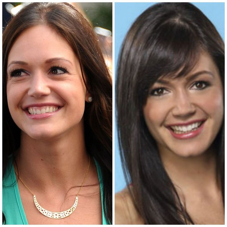 Should Desiree the Bachelorette Bring Back Her Bangs?