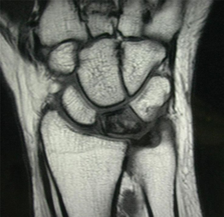Figure 3 - MRI of a wrist with Kienbocks disease showing loss of blood supply to the lunate in a patient with a short ulna