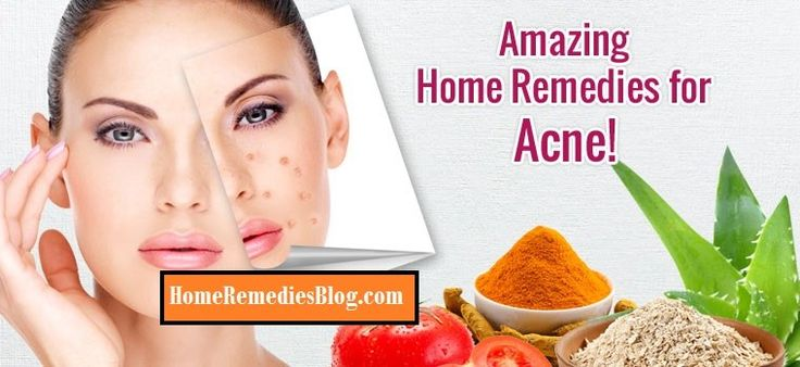 19 Natural Ways to Get Rid of Acne overnight