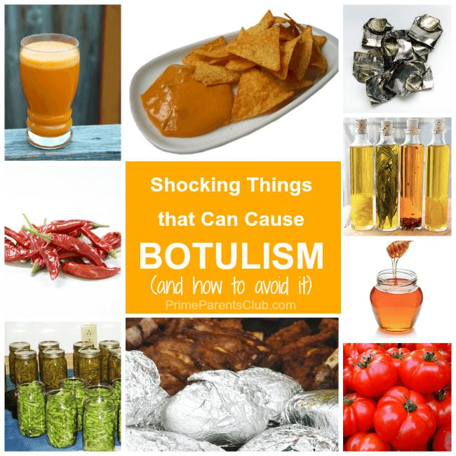 botulism nursing diagnosis