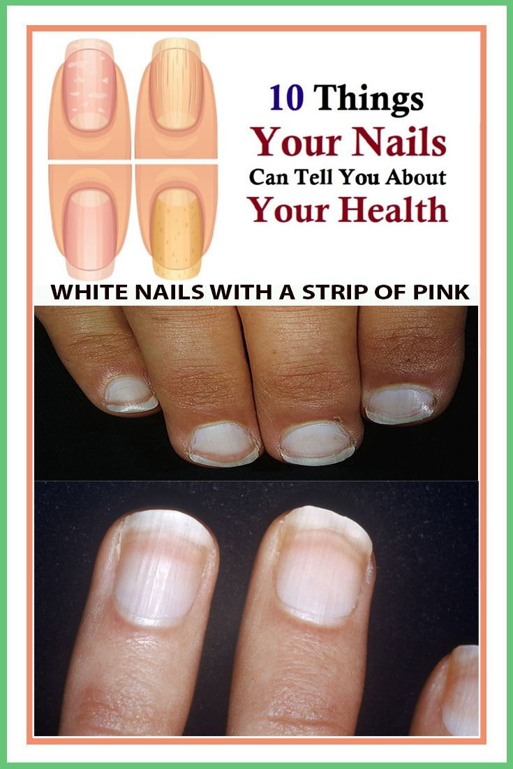 10 Things Your Nails Can Tell You About Your Health Nails Nail Health You Nailed It