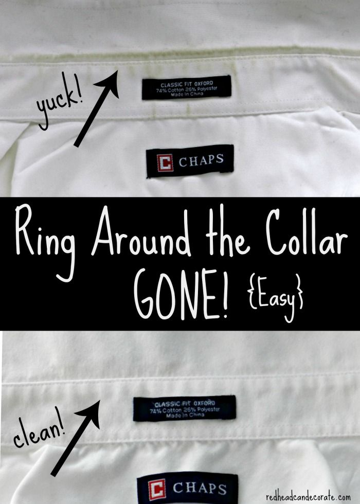Ring Around the Collar Remedy