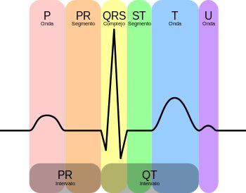 Electrocardiograma: partes del registro.  Wikipedia, la enciclopedia libre. www.albertosanagustin.com