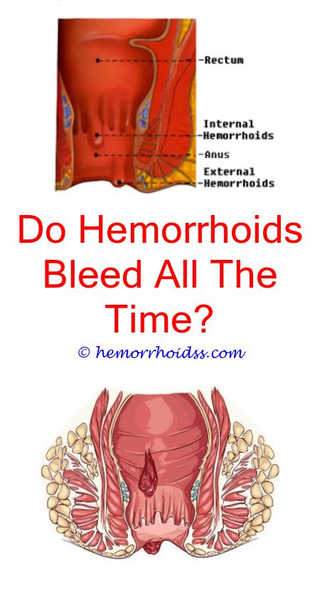 Do you get hemorrhoids from anal sex