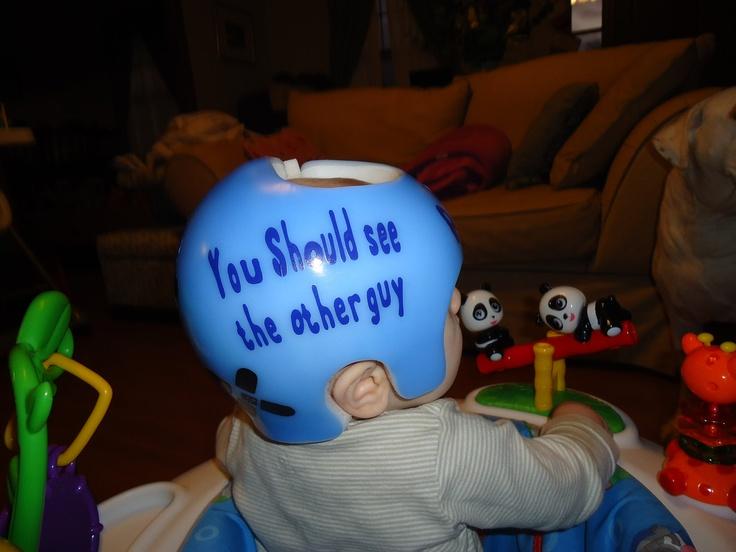 Stickers for medical molding helmets that correct plagiobrachy etc brand name helmets