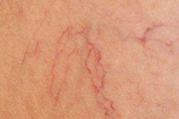 Varizes são pequenas veias dilatadas. Elas podem ser azuladas, roxas ou vermelhas e são claramente visíveis através da pele. Este problema pode afetar tanto mulheres, quanto homens e costuma se concentrar nas pernas e pés. Num primeiro estágio, elas não… Continue Reading →