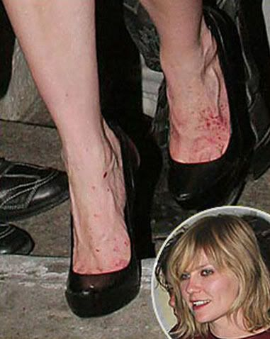 15 Of The Ugliest Celebrity Feet You Won T Believe The