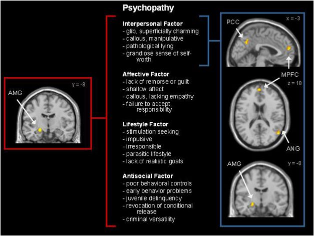 Brain-psychopathy | Forensic psychology and criminology ...