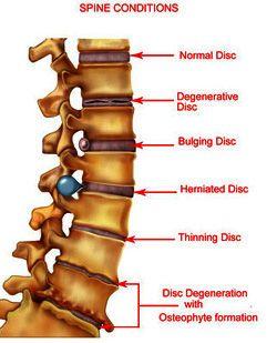 Neck Amp Back Pain Relief Treatment Degenerative Disc