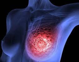 cara mencegah kanker payudara stadium awal  #pengobatankankerpayudara #pengobatankankerpayudaraalami #pengobatankankerpayudaraherbal #obatkankerpayudara #caramencegahkankeratautumorpayudara #obatkankerpayudarastadium4