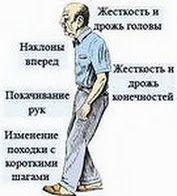 болезнь паркинсона, болезнь паркинсона лечение народными средствами, болезнь паркинсона симптомы, болезнь паркинсона симптомы лечение, болез...