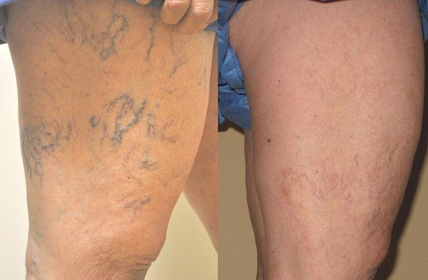 Spider Veins Before and After Treatment | Removal Tips