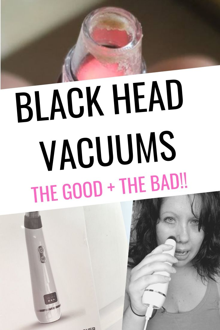 Blackhead Vacuums – Good + Bad
