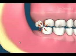 All about Impacted Wisdom Teeth