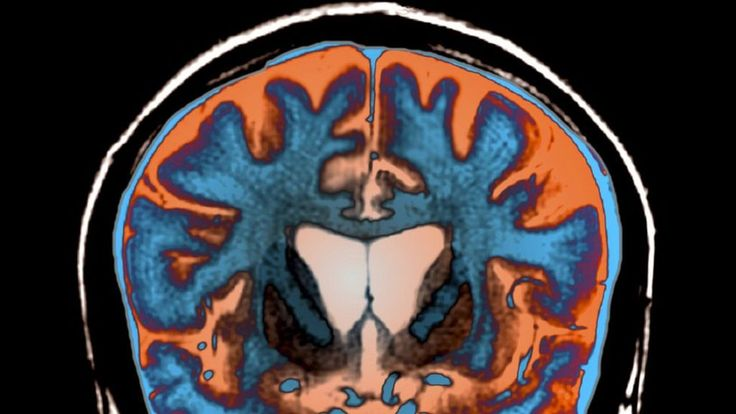 Measuring neurofilament light protein in blood predicts onset and progression of Huntington's disease in patients