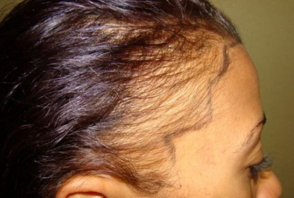 A receding hairline in women may be caused by hormonal problems, some medications, stress, some thyroid problems etc. A receding hairline is more prevalent in young black women and may be linked to hairstyles and lifestyle. Here are the causes of a receding front hairline, treatment options and natural home remedies to fix it. What … #Symptomsandcausesofthyroidproblems