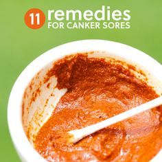 How to get rid of canker sores with natural remedies…