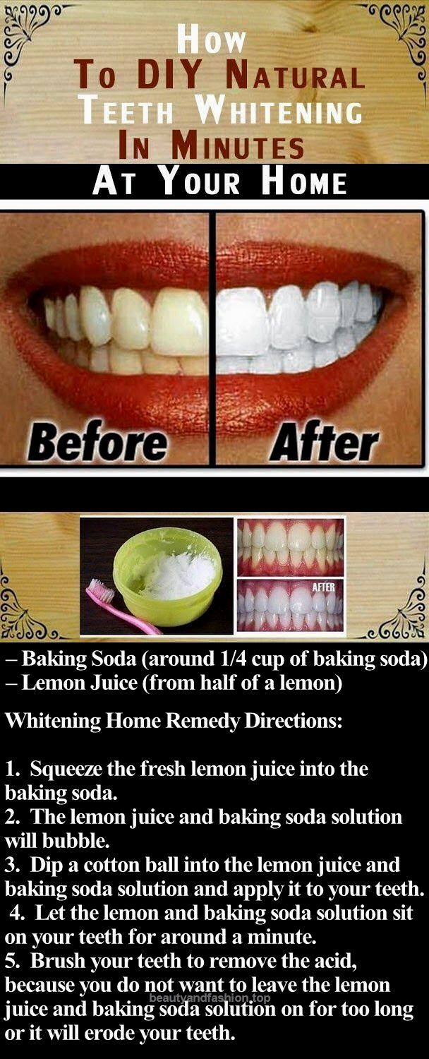 How to whiten things at home: life hacking on the bleaching of washed-up, yellowed, grayed, painted white and colored things from synthetics, cotton, wool and flax. Rules for washing white things 59
