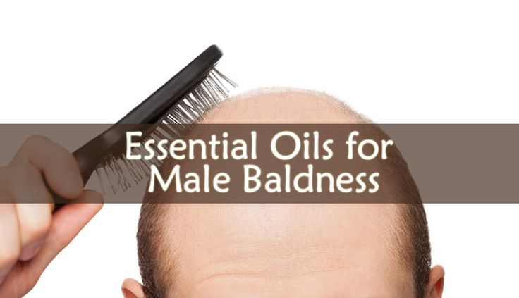 Studies shown that using Essential Oils for Male Baldness can be very effective. But which are the best Essential Oils for Male Baldness?