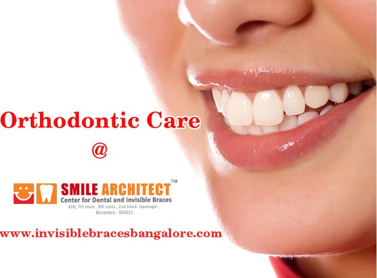 We provides you best #orthodonticcare. To know more about us please click here : http://goo.gl/eeVgUl