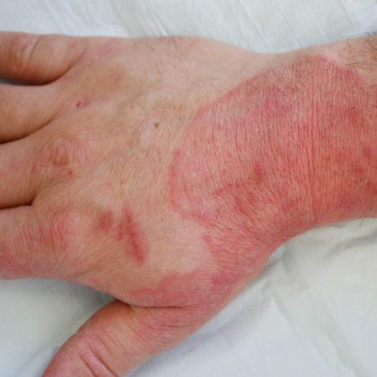 sintomas e tratamento da sinusite