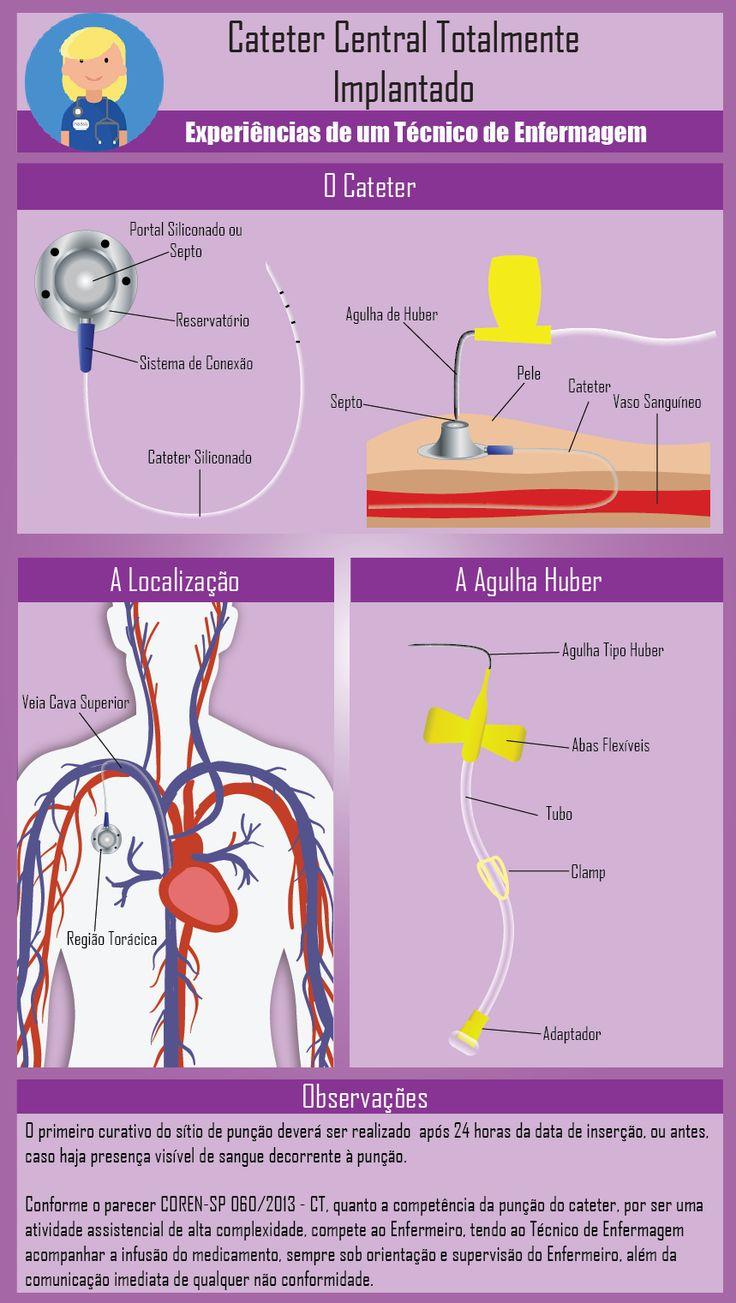 O Cateter Central Totalmente Implantando, mais conhecido como port-a-cath é um dispositivo que fica acoplado abaixo da pele e consiste em um reservatório com membrana perfurável e um cateter de sil…