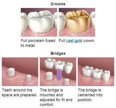 prosthetic devices, crowns and bridges, prosthetic devices, bridges are cemented, Dental Crowns, Tooth Bridges