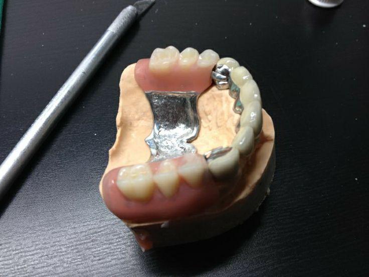 prosthodontics, dental lab, DDS Tiberiu Cazan