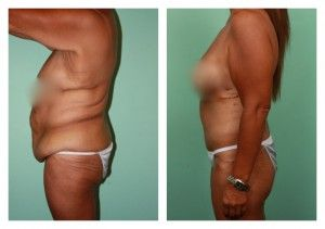 Post Bariatric Plastic Surgery - Choosing Your Doctor, Clinic, and Aftercare Wisely - ObesityHelp