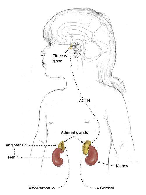 21-Hydroxylase Deficiency