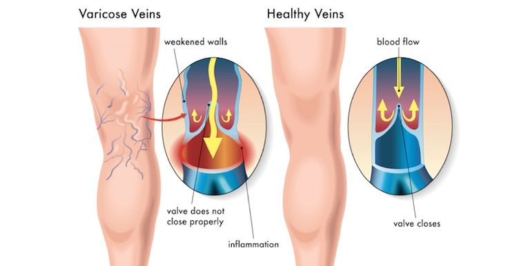 10 Natural Ingredients That Help Improve Blood Circulation and Prevent Varicose Veins - Juicing For Health