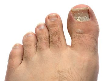 Peroxide To Cure Foot Fungus? (Click image for tip) #Health #ToeFungus #Peroxide