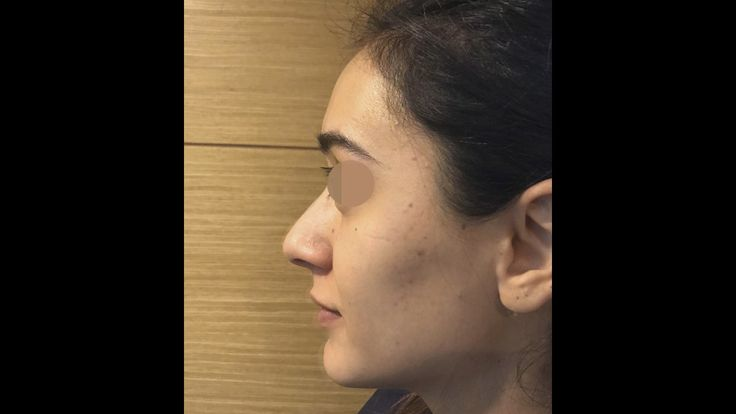 Rhinoplasty Surgery performed by Özge Ergün, MD (50 Days Post Op.)  /// For more information WhatsApp: +90 543 470 4709 ///  #PlasticSurgery #PlasticSurgeryturkey #plasticsurgeryistanbul #NoseJob #nosejobistanbul #nosejobturkey #Rhinoplasty #rhinoplastyturkey #rhinoplastyistanbul #rinoplastia #rinoplastiaestetica #Nasenkorrektur #nasenkorrekturistanbul #Aesthetics #beauty #estética #cirugíaplástica‬ #estetica #chirurgieplastique #鼻形成術 #整形手术 #جراحةالتجميل