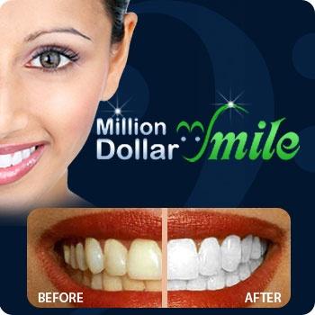$49 for Laser Teeth Whitening Procedure, Take-Home Kit & More. #milliondollarsmile #teethwhitening #sandiego #deal #whitening