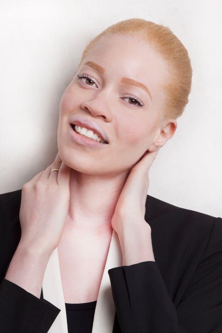 hot albino women