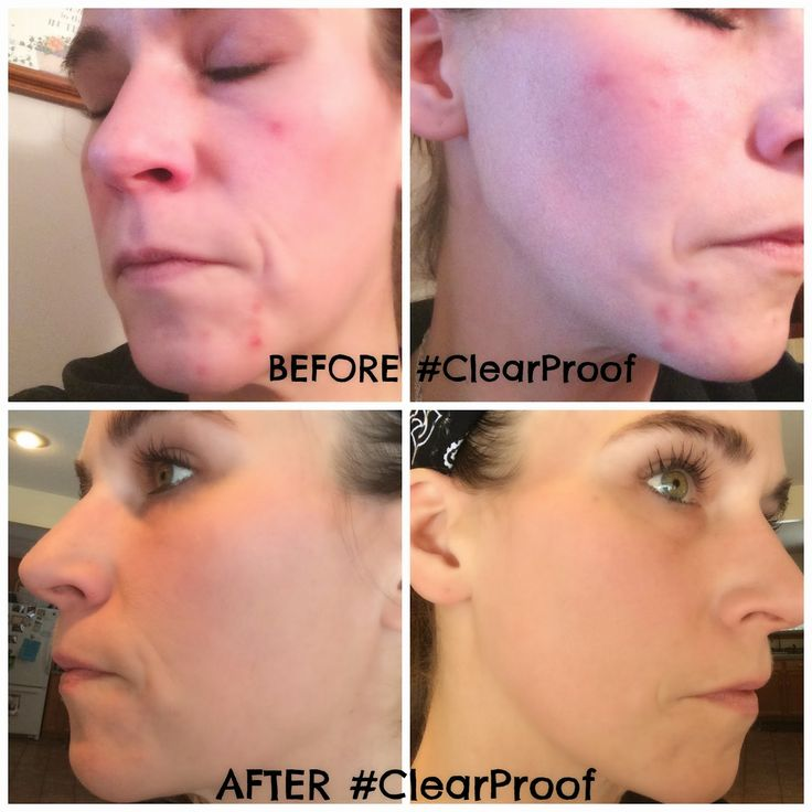 Mary Kay Clear Proof Acne System Review #ClearProof: A Little Goes A Long Way...CHECK IT OUT!