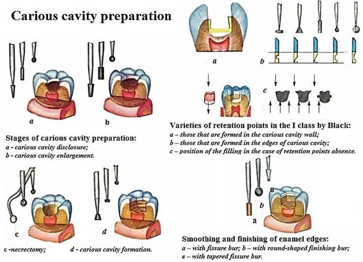 Crisis cavity preparation dental tips pinterest cavities
