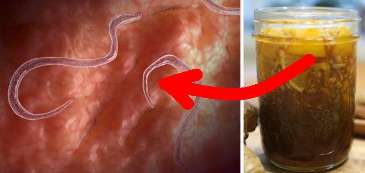 Preparatul care elimina orice infectie si parazit din corp este acum disponibil in orice bucatarie! Ai nevoie doar de 6 ingrediente simple.....