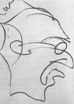 """""""2 HOURS 35 MINUTES AFTER 1st DOSE.  Patient follows quickly with another drawing.  'I'll do a drawing in one flourish... without stopping... one line, no break!'  Upon completing the drawing the patient starts laughing, then becomes startled by something on the floor."""""""