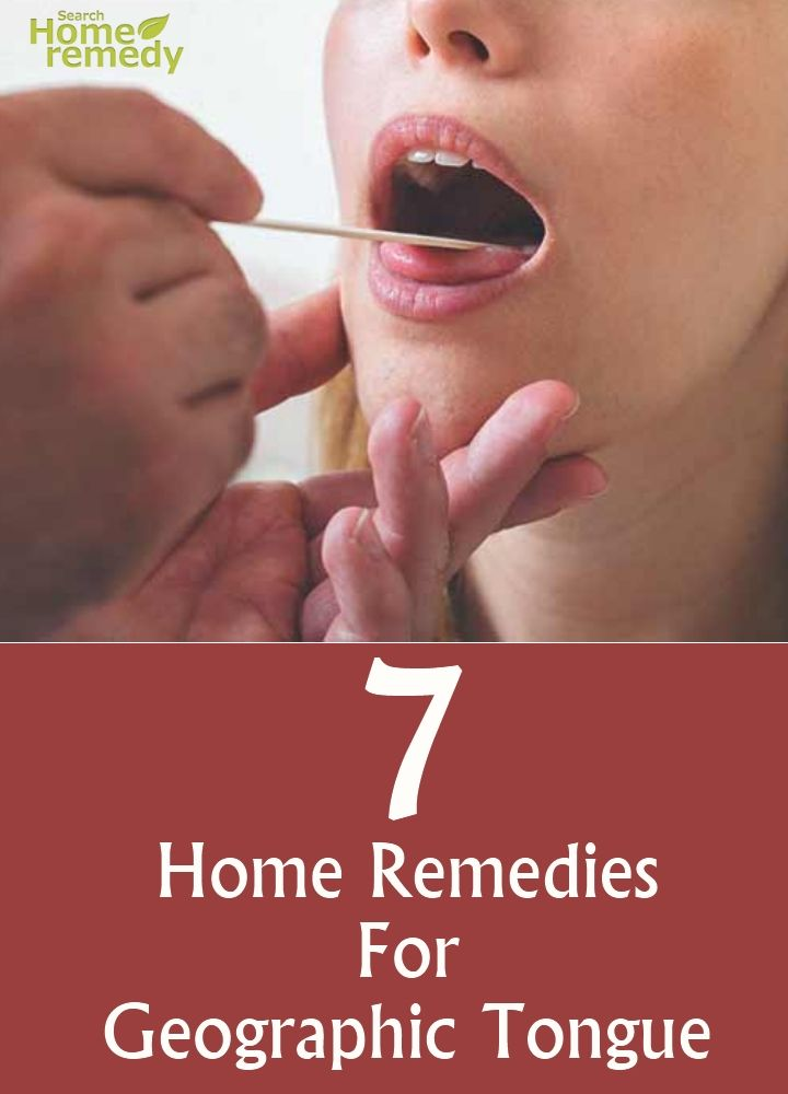 7 Home Remedies For Geographic Tongue