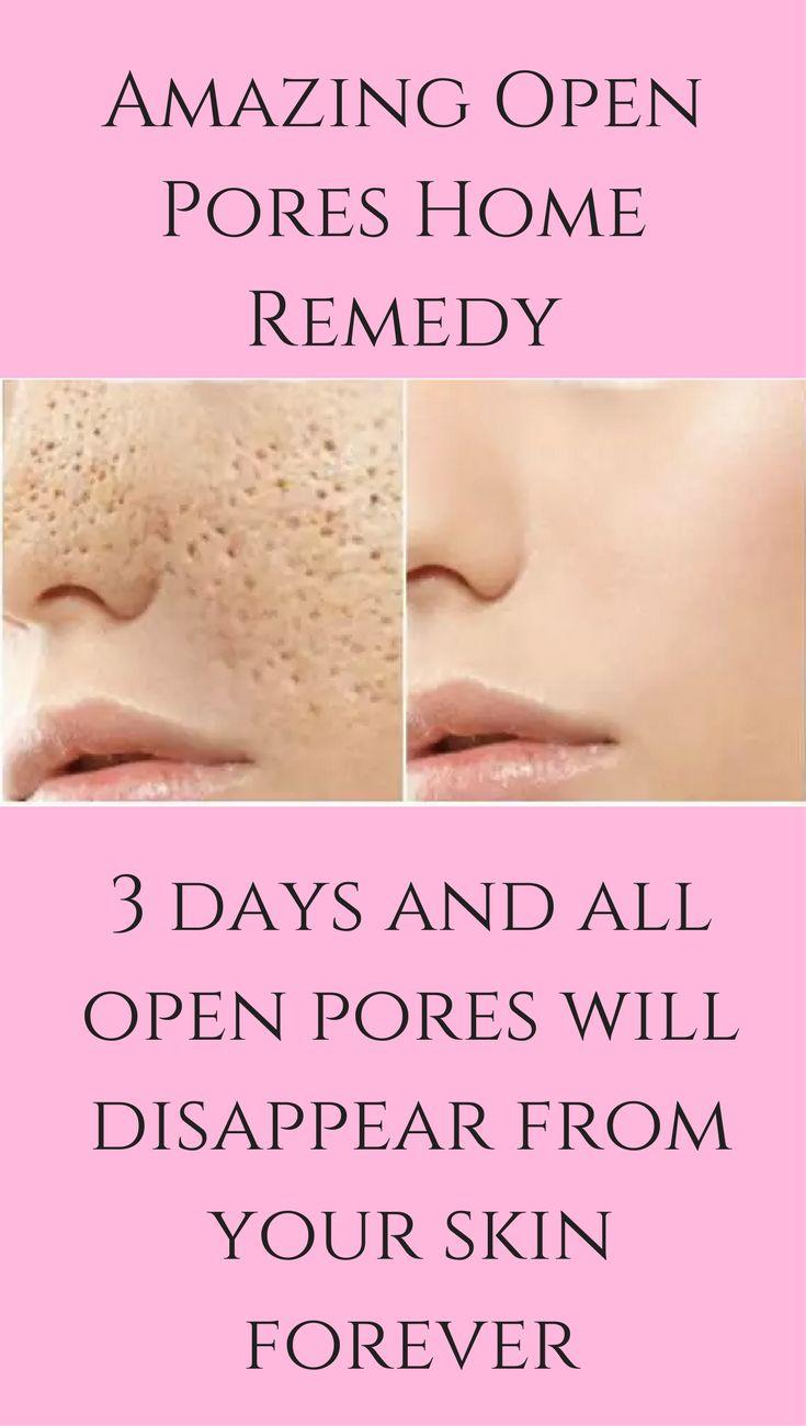 3 Tage und alle offenen Poren werden für immer von Ihrer Haut verschwinden