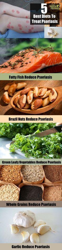 5 Best Diets To Treat Psoriasis