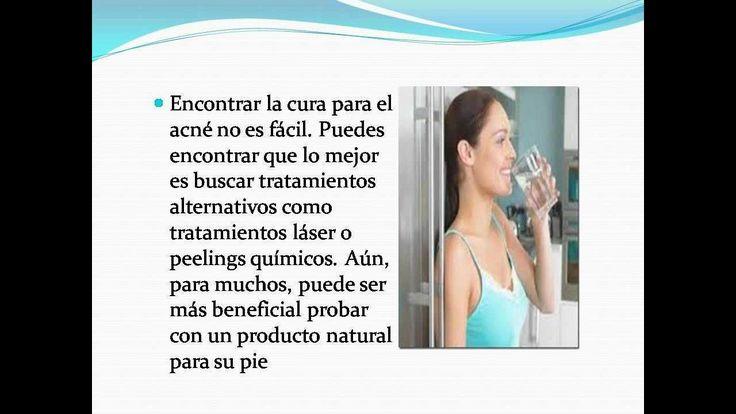 Como Controlar El Acné: Usando Métodos Naturales - http://solucionparaelacne.org/blog/como-controlar-el-acne-usando-metodos-naturales/