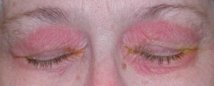 Ocular Rosacea symptoms    are also given with solution. People suffering from Rosacea and in particular from Ocular Rosacea have the tendency to develop recurrent stye. In this case, the best treatment for you is surgery.